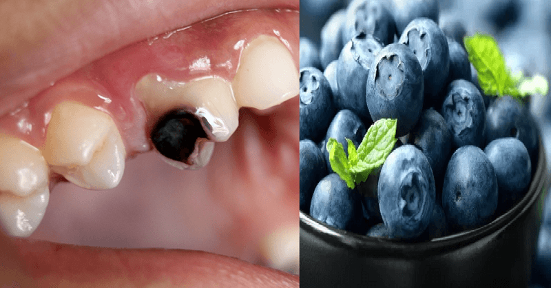 eat blueberries and stay away dental problems