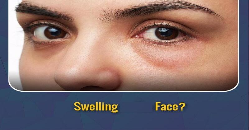 Health First | तुमचा चेहरा सुजल्यासारखा वाटतोय ? हे उपाय करून पाहा