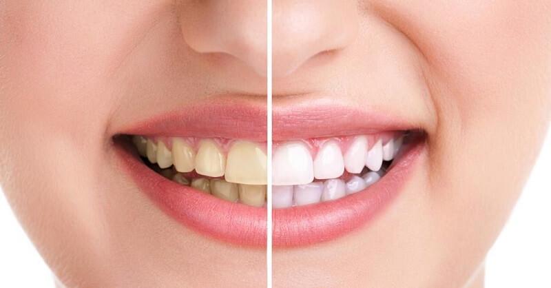 vanish your teeth yellowness