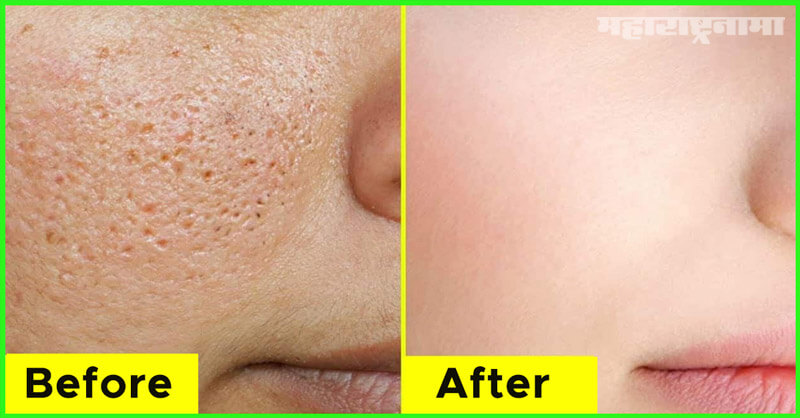 Home remedies, Skin pores, Health fitness, Marathi News ABP Maza